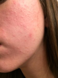 Illustration of Bumps And Itching On The Face After The Use Of Birth Control?