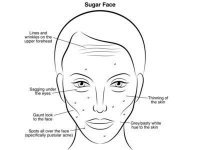 Illustration of Inflamed Zits And White Streaks On The Face?