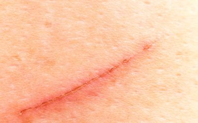 Illustration of Prevention Of Scars On The Skin?