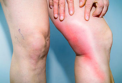 Illustration of The Causes And Treatment Of Leg Pain Are Difficult To Straighten?