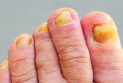 Illustration of The Cause Of The Color Of Different Toe Nails With Fingernails?