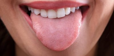 Illustration of Causes White Tongue And Numbness?