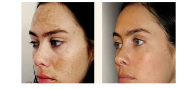 Illustration of Overcoming Hyperpigmentation On The Face?