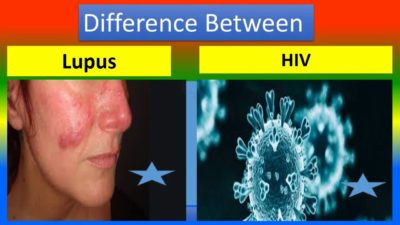 Illustration of Difference Between Lupus And HIV?