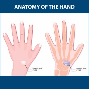 Illustration of Where Can A Ganglion Grow?