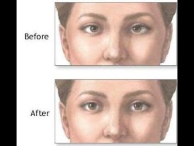 Illustration of The Right Treatment For Overcoming Lazy Eyes?