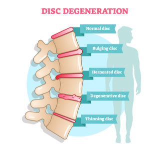 Illustration of Can Degenerative Diseases Of The Skin Be Called Aging?