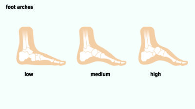 Illustration of History Of Foot Injury Accompanied By Differences In Foot Shape?