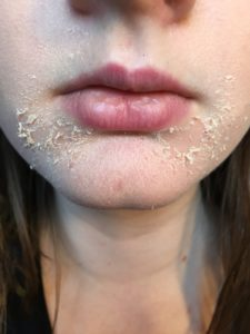 Illustration of Facial Skin Feels Burning And Peeling After Using Tretinoin?