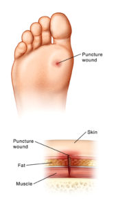 Illustration of The Hole In The Sole Of The Foot That Increases And Widens?