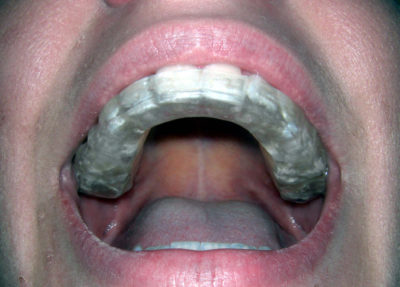 Illustration of The Stages Of Examination To Establish The Diagnosis Of Jaw Tumors?