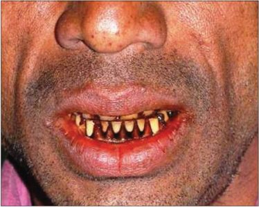 Illustration of Can Chewing Betel And Tobacco Cause Oral Cancer?