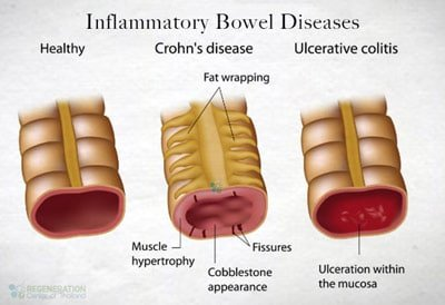 Illustration of Is Ulcerative Colitis Cured?