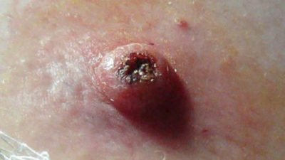 Illustration of A Small Lump Filled With White Fluid And Feels Sore In The Area Around The Breast?