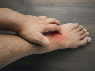 Illustration of How To Deal With Itching On The Feet?