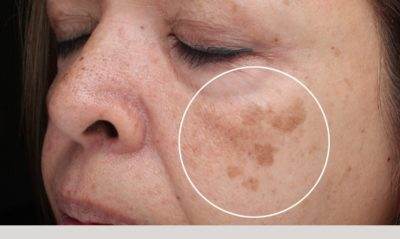 Illustration of The Appearance Of Brown Spots On The Face?