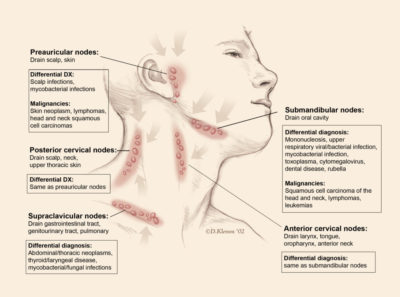 Illustration of Can Toxoplasma Cause Enlargement Of Glands In The Neck?