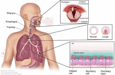 Illustration of Causes Such As Mucus Between The Respiratory Tract And Mouth?