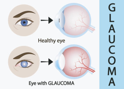 Illustration of The Use Of Contact Lenses In People With Glaucoma?