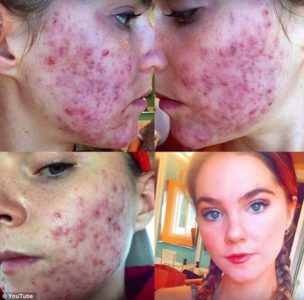 Illustration of Overcoming Cystic Acne On The Face?