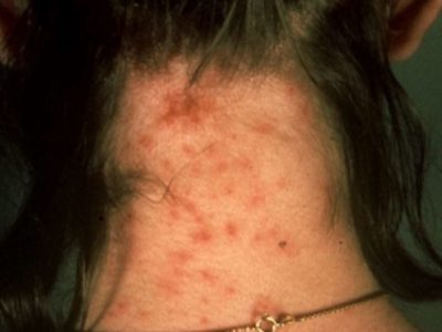 Illustration of Effects Of Cat Lice Bites On Pregnant Women?