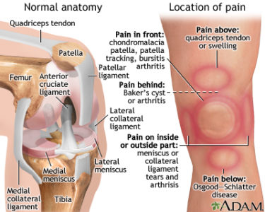 Illustration of The Cause Of Pain And Aches Felt In The Knee Area?