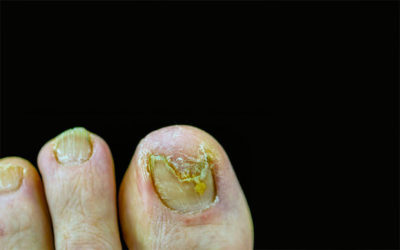 Illustration of Use Shoes When Treating Fungal Infections Of The Nails?