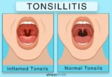 Solution To Overcome Tonsils That Never Heal?