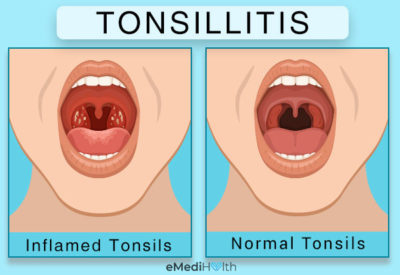 Illustration of Solution To Overcome Tonsils That Never Heal?