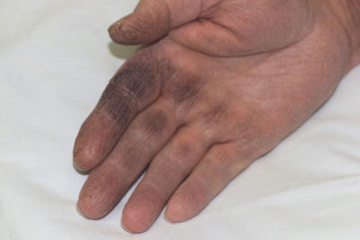 Illustration of The Cause Of The Palm Suddenly Black?