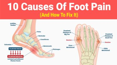 Illustration of The Cause Of Feet Is Often Painful And Difficult To Walk?