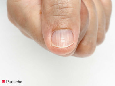 Illustration of Nails Turn Yellow And Body Fever?
