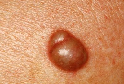Illustration of Brownish Spots Come Out Of The Vagina With Red Spots On The Chest?