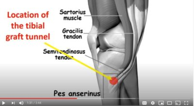 Illustration of Pain In The Area Of the Former Muscle Grafting Surgery?