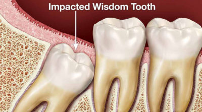 Illustration of Wisdom Teeth Growth At The Age Of 22 Years?