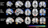 Effects Of HIV On The Brain?