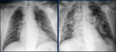 Illustration of X-ray Examination Results Of The Child's Chest?
