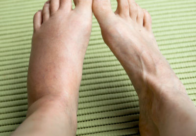 Illustration of The Feet Are Swollen For 2 Weeks And Feel Hot?