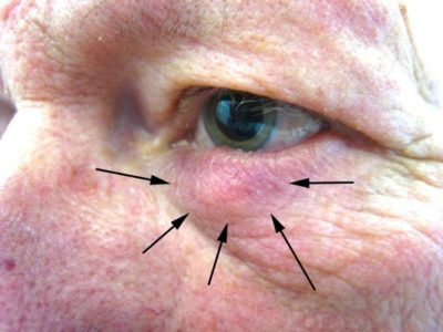 Illustration of Overcoming Lumps Under The Eyes That Are Not Enlarged?