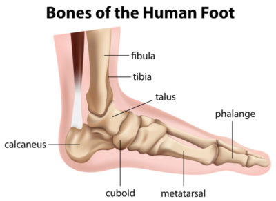 Illustration of Are The Feet Not The Same Length After A Fracture?