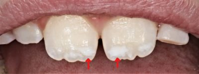 Illustration of Can Teeth That Have Been Patched Be Bleached?