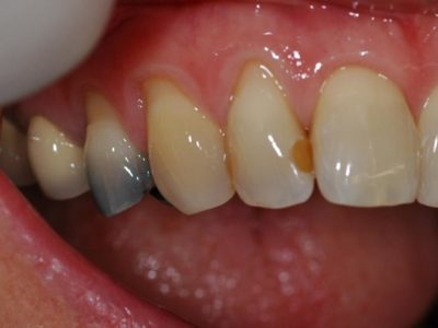 Illustration of Teeth Turn Yellow After Filling?