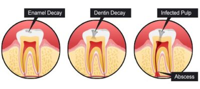 Illustration of Do Cavities With Painful Teeth Have To Be Removed?
