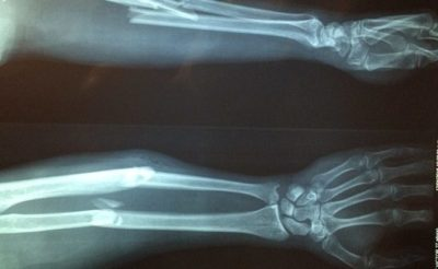Illustration of The Danger Of Fractured Bones Is Not Treated Properly Until It Still Feels Painful For 1 Month?