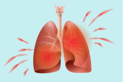 Illustration of Can Shortness Due To Lung Disease Cause Death?