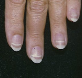 Illustration of Transverse Lines Appear On The Nail After Experiencing Allergies?