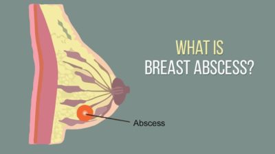 Illustration of How To Handle An Abscess In A Breast That Has Broken?