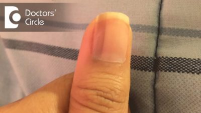 Illustration of Black Lines On The Nails Are Getting Thicker?