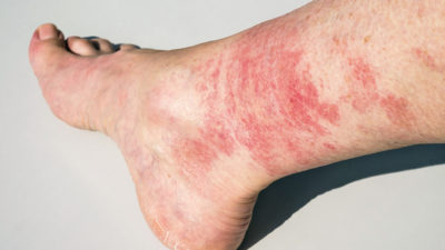 Illustration of Red Spots Appear On The Feet Suddenly?