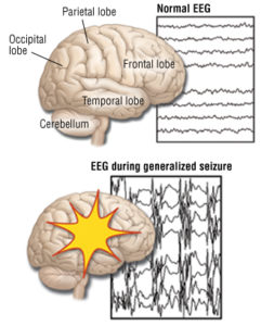 Illustration of The Cause Of The Body Often Seizures Suddenly Without A Fever?